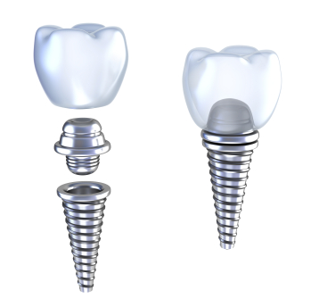 Dental Implants by Naoko Kimura DDS